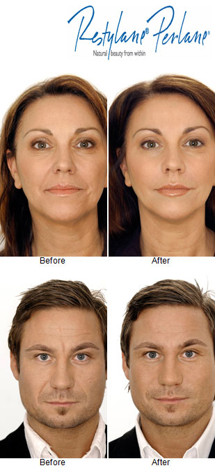 Botox cosmetic, Dysport, Dermal Fillers